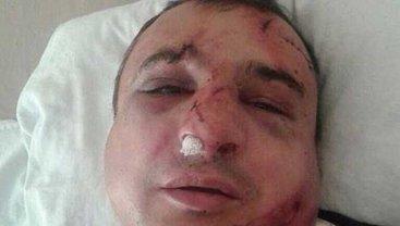 Арсена Клинчаева побили патриоты - фото 1