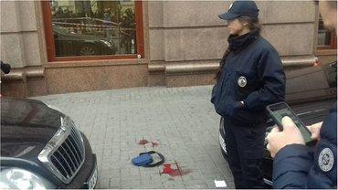 Охранник убитого находится в тяжелом состоянии  - фото 1