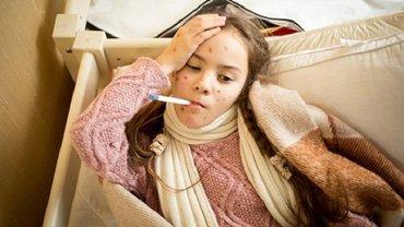 Корь в Одессе: что делать детям без прививок - фото 1