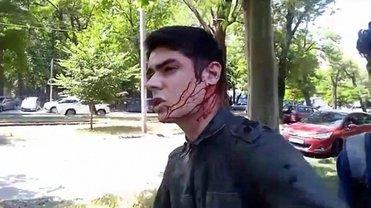 На Виталия Устименко напали в Одессе - фото 1