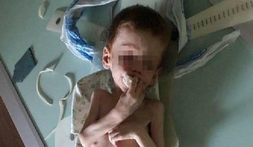 В Кировоградской области родители морили голодом своего четырехлетнего сына - фото 1