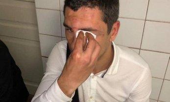 Неизвестные жестоко избили Игоря Белова - фото 1