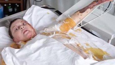 Джудит Гоф требует наказать виновных в смерти Гандзюк - фото 1