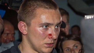 Расследование нападений на Стерненко сливают полицейские - фото 1