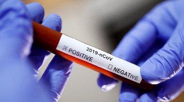Украина у русских закупит тесты на коронавирус, которые не применялись на инфицированных людях - фото 1