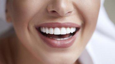 Зубные керамические виниры: основные эксплуатационные преимущества - фото 1
