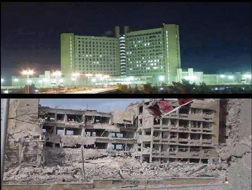 Больница Алеппо до и после боевых действий - фото 26372