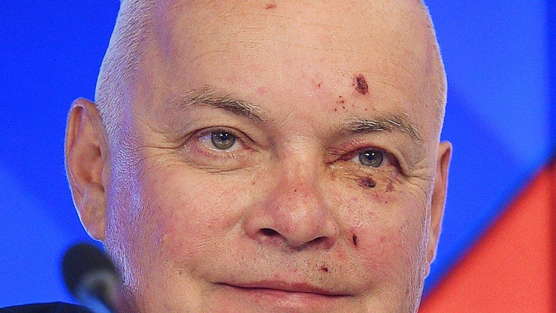 Ударился об оккупированный Крым. Топовый пропагандист Кремля разбил лицо - фото 46080