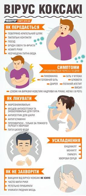 Симптомы и лечение вируса Коксаки - фото 62953