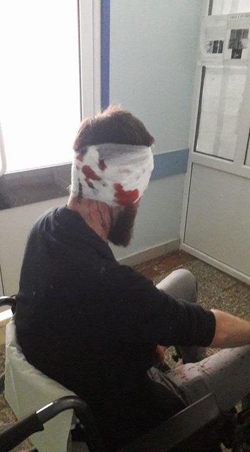 В Харькове депутата-антикоррупционера избили прямо средь бела дня - фото 70300