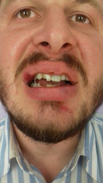 В Ровенской области священник Московсого патриархата выбил зуб коллеге из УПЦ КП - фото 70074