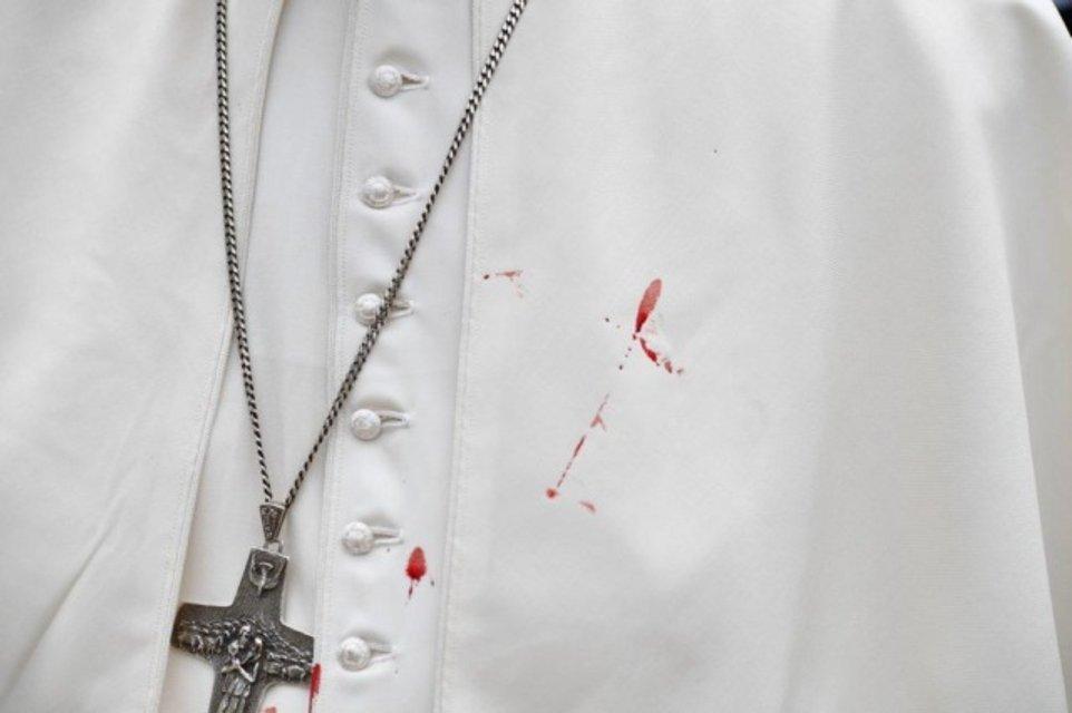 Папа Римский появился на проповеди с рассечённой бровью и синяком под глазом (фото) - фото 73044