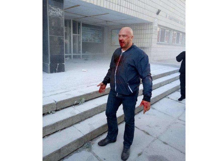 В киевском спортклубе устроили кровавую бойню (ВИДЕО) - фото 73941
