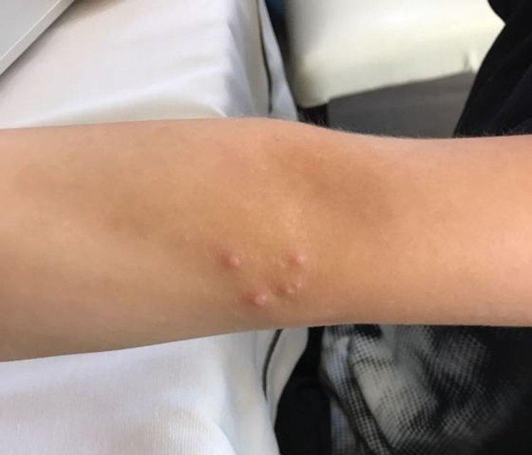 Вирус Коксаки: Инфекция добралась до Крыма - фото 71490