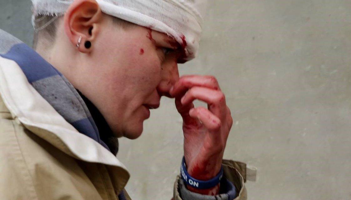 Радикалы напали на гостей Фестиваля Равенства - фото 77722