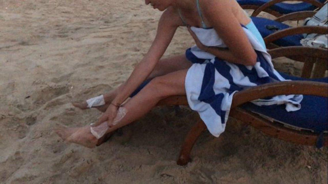 Натали Неведорову ужалила ядовитая медуза - фото 77882