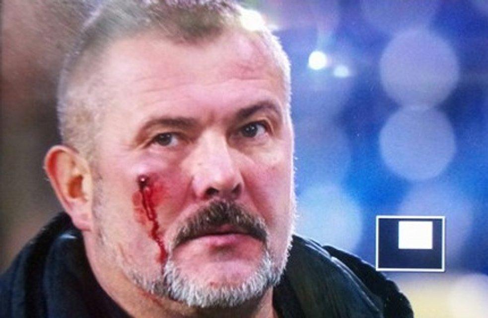 Футбольные фанаты избили нардепа Березу на матче - фото 80877