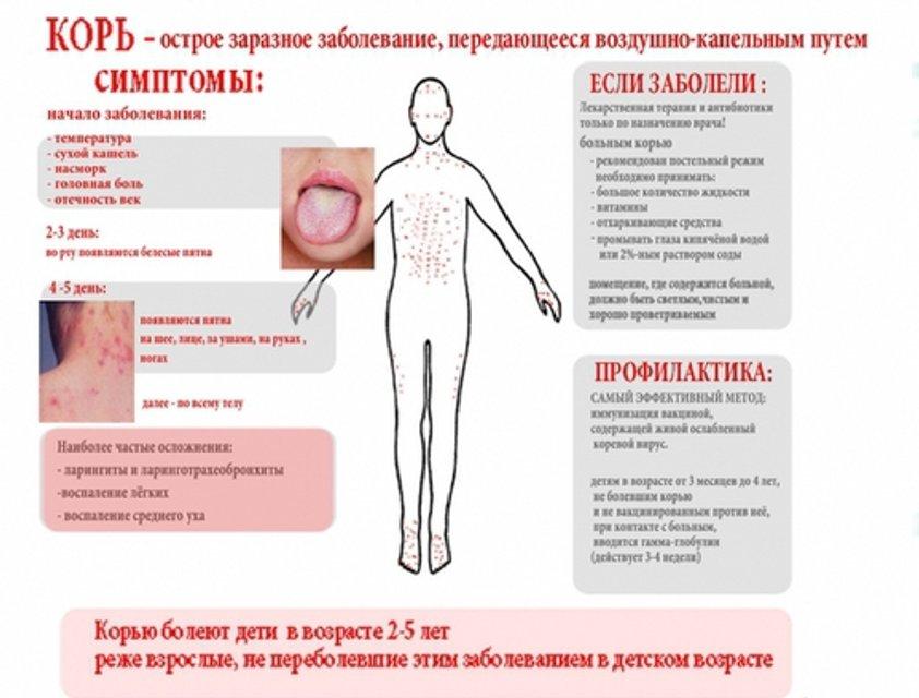 Вспышка кори у детей и взрослых: симптомы и лечение - фото 90603