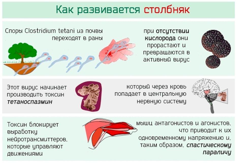 Столбняк пришел в Украину: инкубационный период, симптомы, лечение - фото 105513