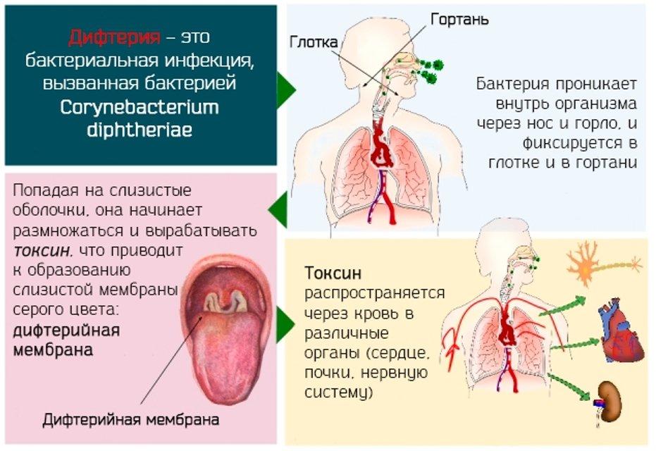 Дифтерия в Украине: Симптомы и лечение у детей и взрослых - фото 102811