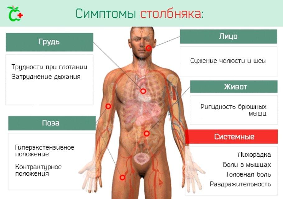 Столбняк пришел в Украину: инкубационный период, симптомы, лечение - фото 105512