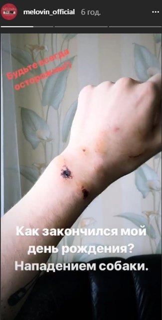 День рождения Melovin закончился нападением собаки - фото 119168