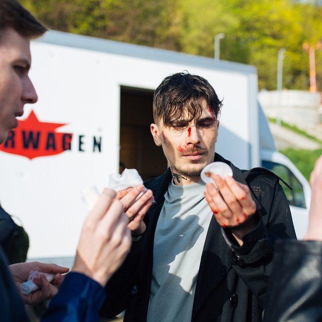 Солист группы 'Время и стекло' травмировался на съемках - фото 121330