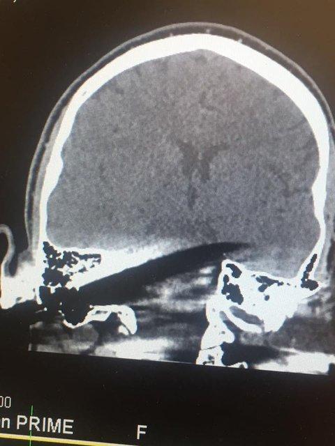 Жуткие фото: В Киеве врачи достали нож из головы мужчины (18+) - фото 123692