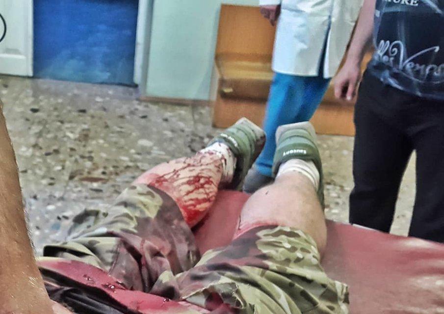 В Киеве напали ветерана АТО, который защищал ДАП - фото 122861