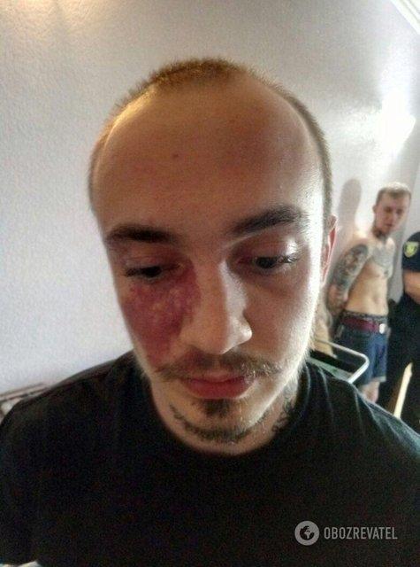 'Наказывали бандеровца': в Харькове задержали людей, которые напали на киборга Вербича - фото 123448