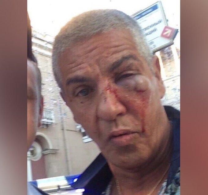 Чувствую себя прекрасно: Сами Насери несмотря на фото с фингалом отрицает, что его избили - фото 140164