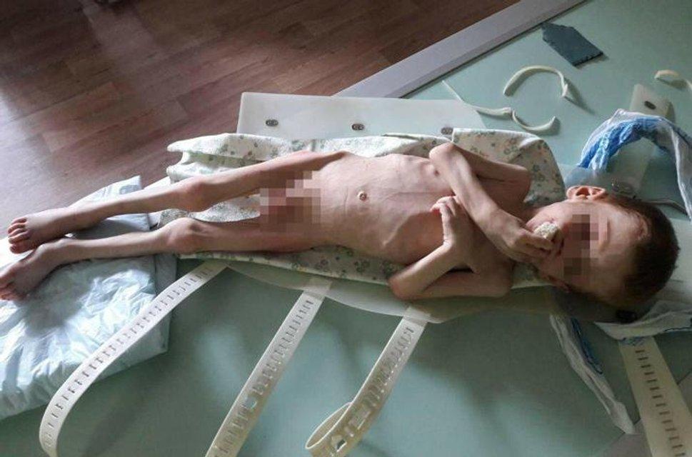 В Кировоградской области родители морили голодом своего четырехлетнего сына (фото 18+) - фото 141330