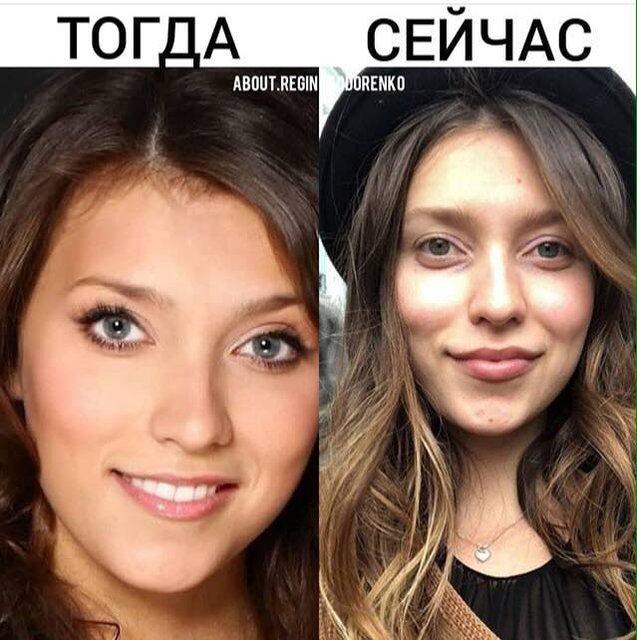 В сети сравнили Регину Тодоренко до и после пластических операций - фото 141698