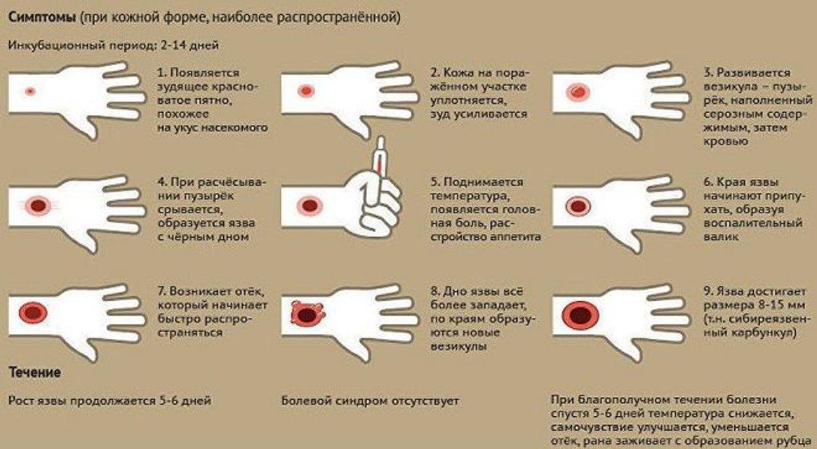 Сибирская язва в Украине: симптомы, возбудитель и лечение - фото 151375