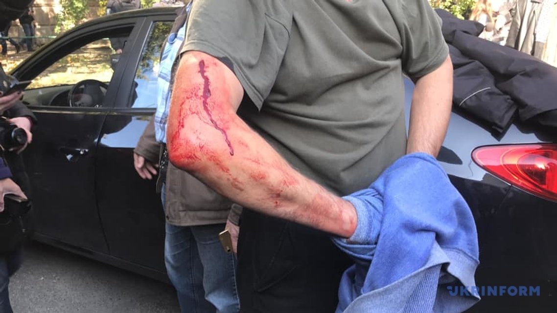 Правоохранители ранили активиста  - фото 152638