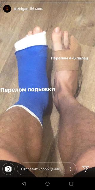 ДТП с участниками Дизель шоу: какие травмы получили актеры - фото 154534
