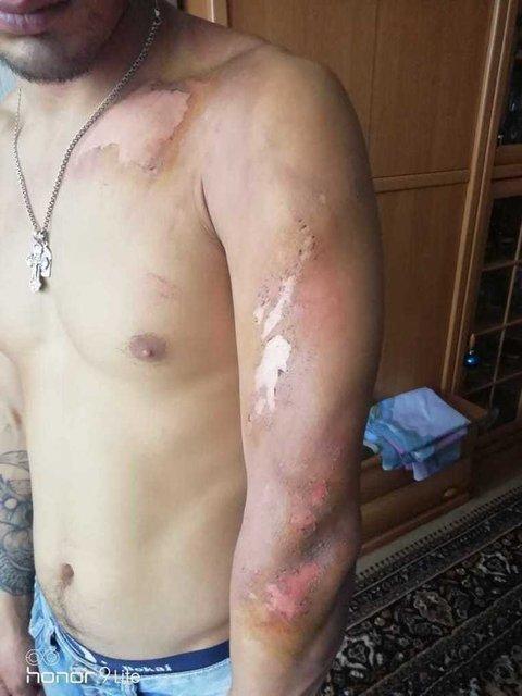 Пьяные русские полицейские три часа резали и обливали кипятком 25-летнего парня - фото 167050