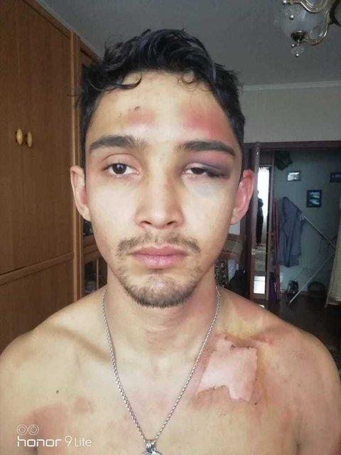 Пьяные русские полицейские три часа резали и обливали кипятком 25-летнего парня - фото 167051