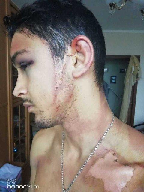 Пьяные русские полицейские три часа резали и обливали кипятком 25-летнего парня - фото 167053