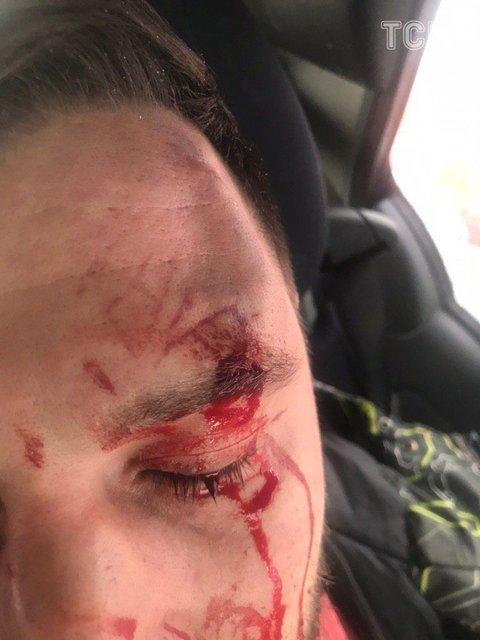 Оставили истекать кровью: известны подробности нападения на директора Цибульской - фото 169793