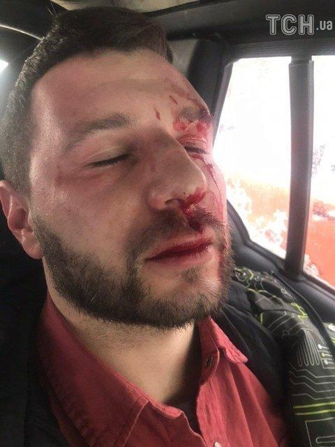 Оставили истекать кровью: известны подробности нападения на директора Цибульской - фото 169795