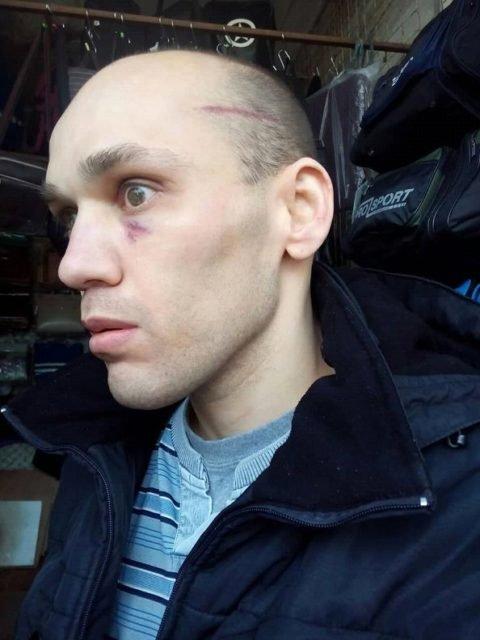 В Крыму жестоко избили инвалида, который плюнул в 'депутата' Госдумы (ФОТО) - фото 174409