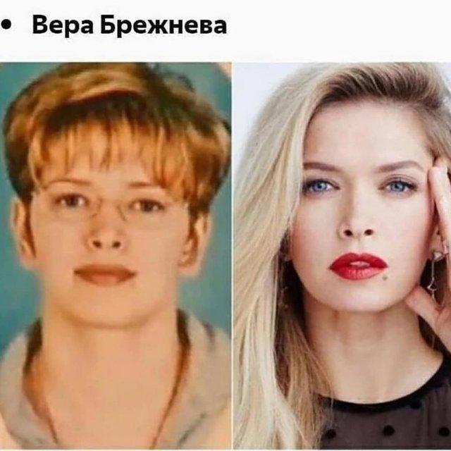 Вера Брежнева рассказала о пластической операции и показала фото ДО - фото 177579