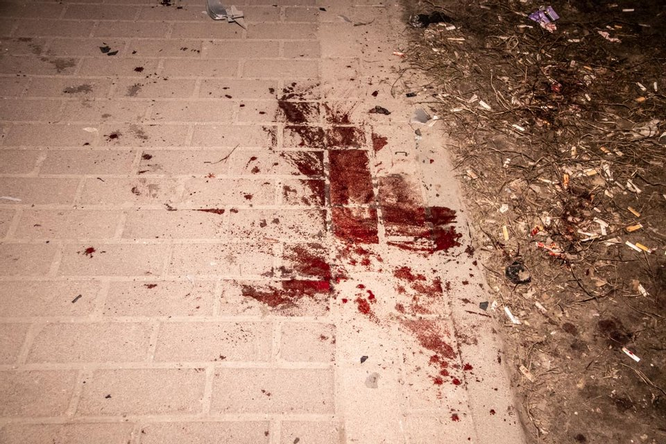 В Киеве шпион подорвал машину и лишился руки - ФОТО, ВИДЕО - фото 178746