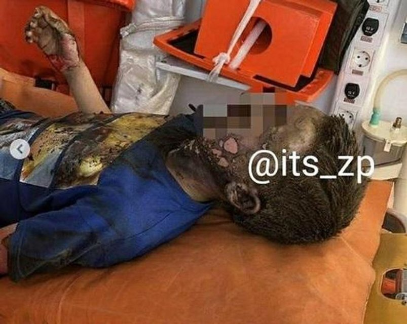 Неверноятное чудо: в Запорожье ребенок выжил после удара током в 10 тысяч Вольт (ФОТО 18+) - фото 179093
