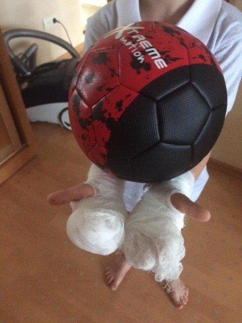 Аниматоры развлеклись: в Николаеве 5-летнему мальчику вылили на руки жидкий азот (ФОТО) - фото 182793