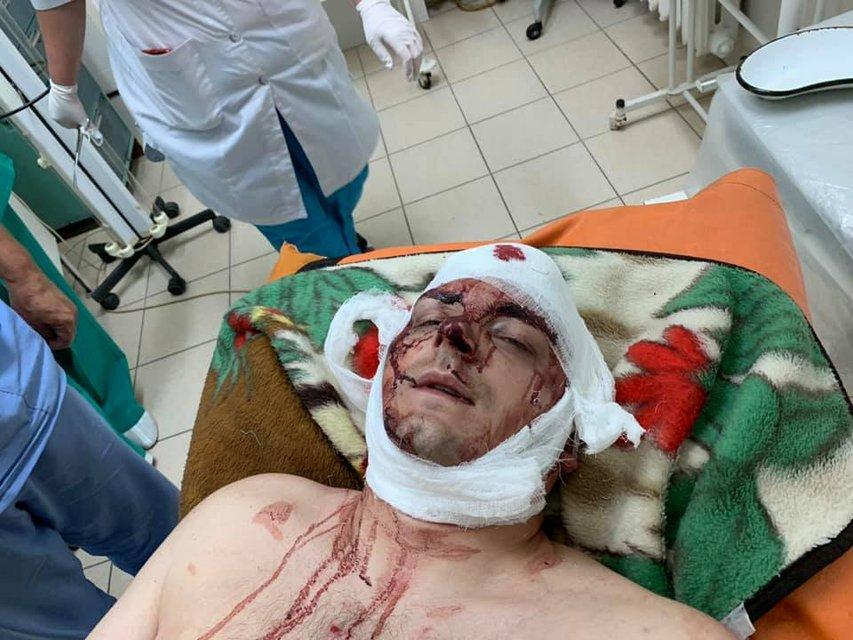 Неизвестные проломили голову мэру Конотопа Артему Семенихину - фото 183371