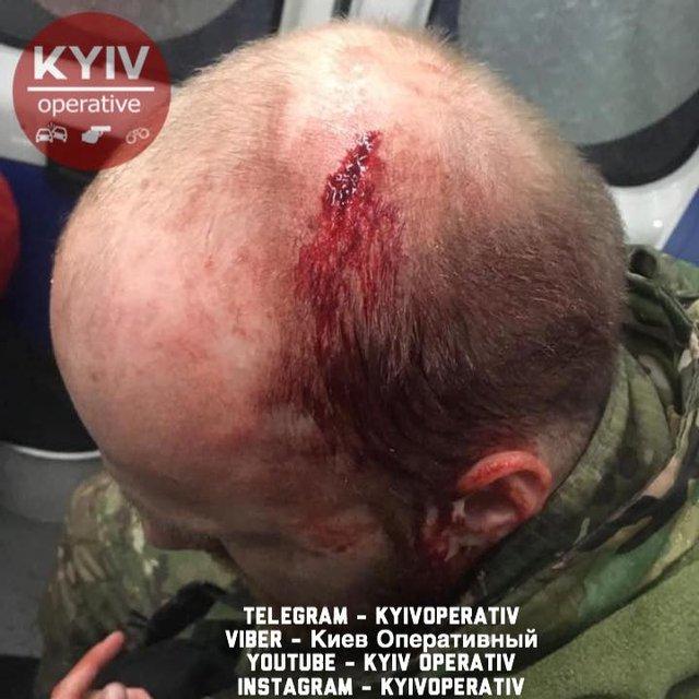 Задержанные за кражу ромы избили киевских копов прямо в участке, их отпустили - фото 185678
