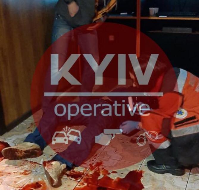 Киевлянин пошел поиграть и попал под нож – жуткие ФОТО - фото 191434