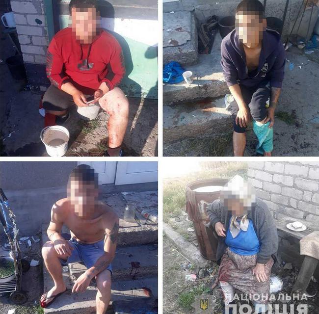 На Одещине местные нашли гранаты и принесли их домой: Итог печален - фото 201426